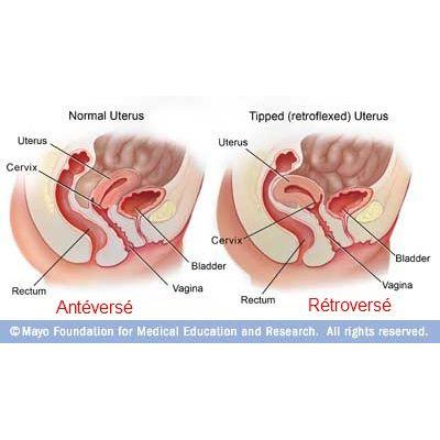 Utérus rétroversé - Image